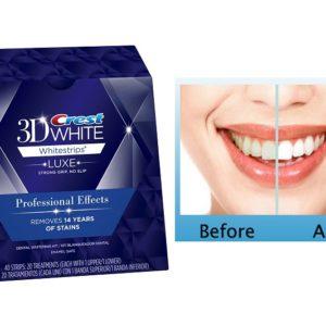 แผ่นแปะฟอกฟันขาว CREST 3D WHITE LUXE WHITESTRIPS PROFESSIONAL EFFECTS